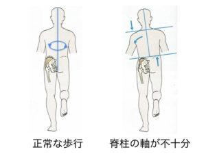 脊柱の代償運動